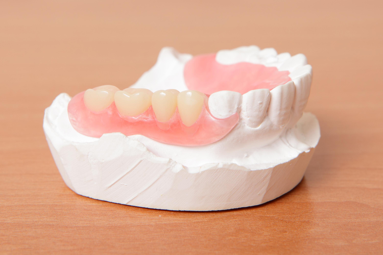 Dentures or Dental Bridges? Which are best for you? | Naba Dental