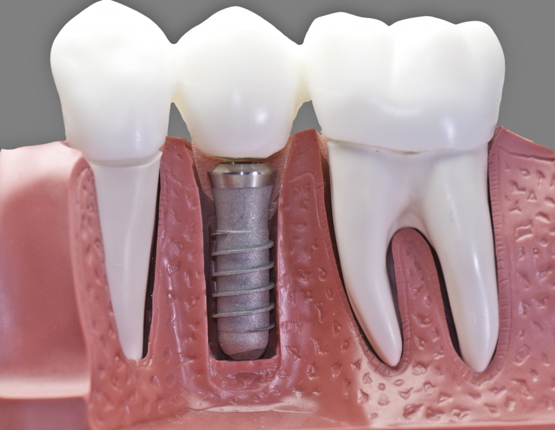 Custom Dental Bridges at your Tanglewood Dentist
