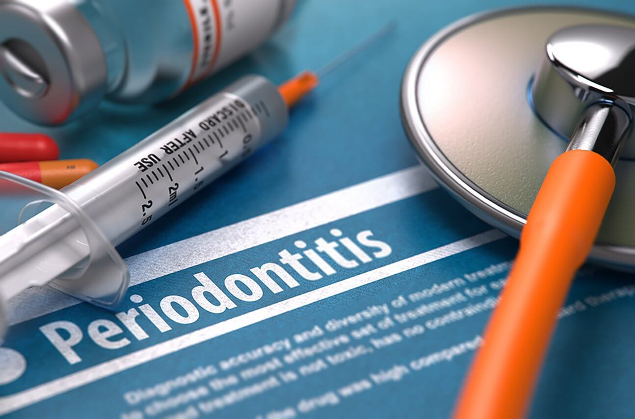 Getting to the Root of Periodontal Disease