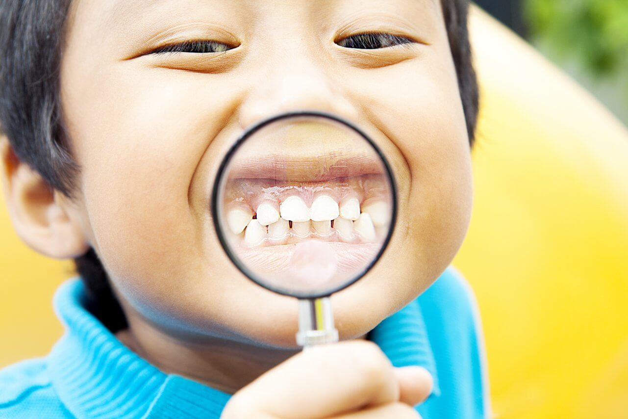 Preventative and Reactive Protection with Sealants and Fillings
