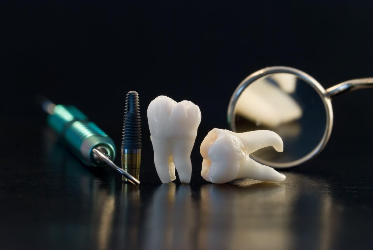 Restoration Dentistry: A New Smile